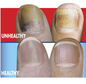 Mycocide improves unhealthy nails
